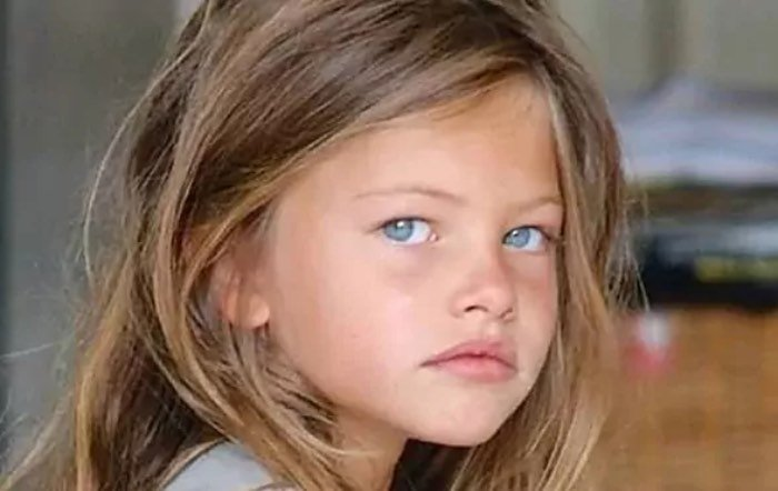 Graves problemas de salud: la niña titulada como la más guapa del mundo, en su peor momento